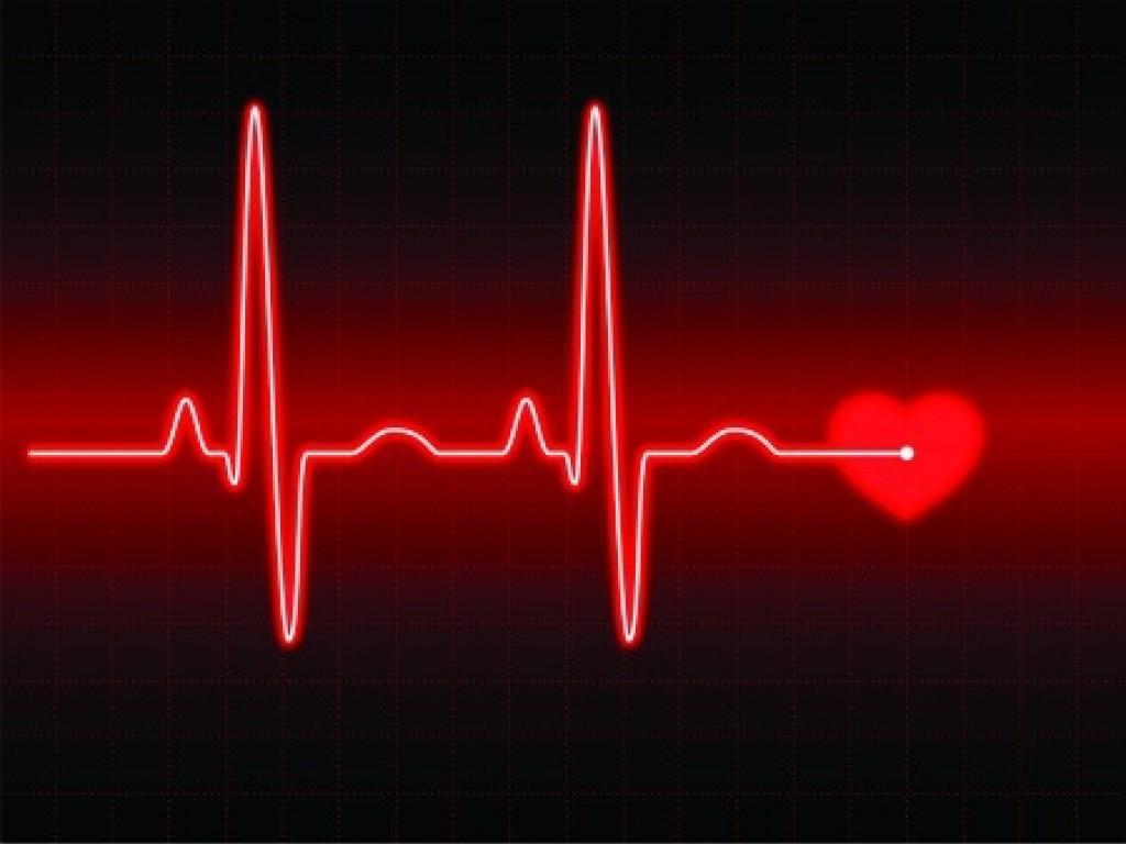 Resultado de imagem para Alerta! 320 mil pessoas morrem por ano no Brasil por conta de arritmias cardíacas